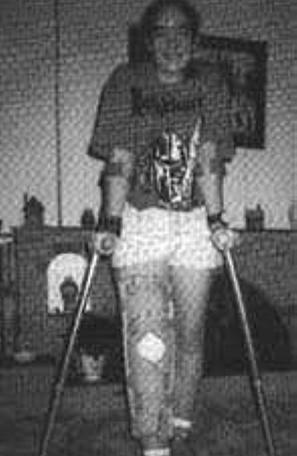 Advisor Sarah Halsall with crutches for The Quest, the Official Newsletter of the Knightmare Adventurers Club. Volume 2, Issue 2.